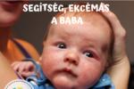 baba ekcémára krém